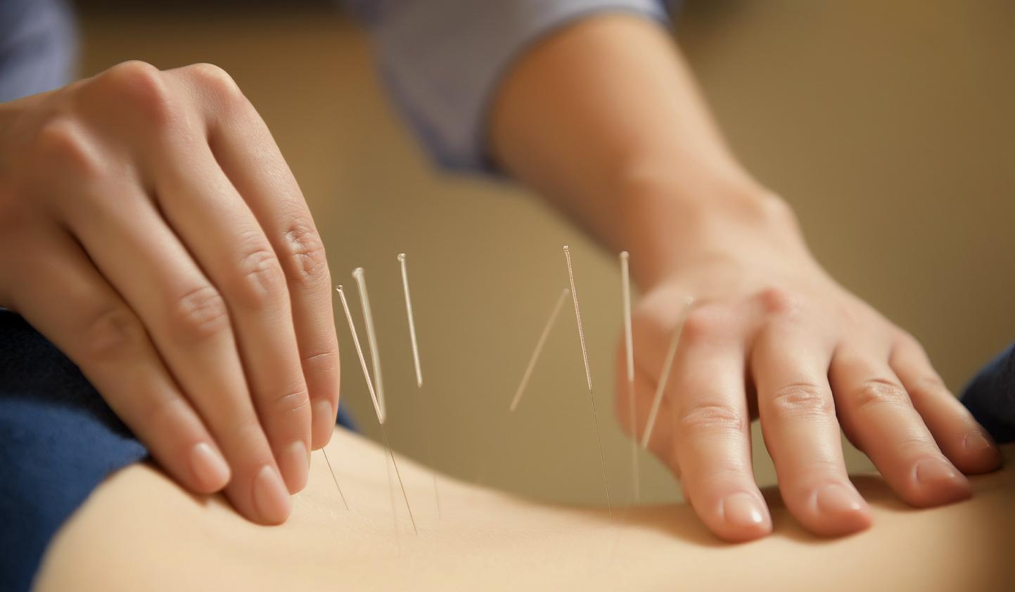 acupuntura fisiatria sao paulo hcfmusp