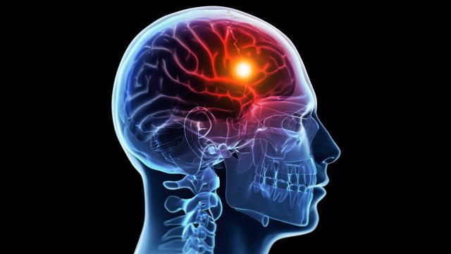 stroke avc derrame cerebral